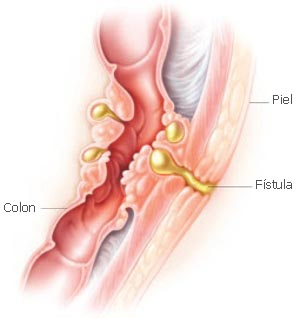 Colon Bladder Fistula Surgery http://altincekodhima.com/index.php?cl=en&go=divertikuloza